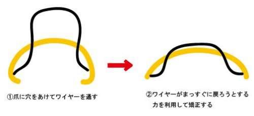 マチワイヤー方法